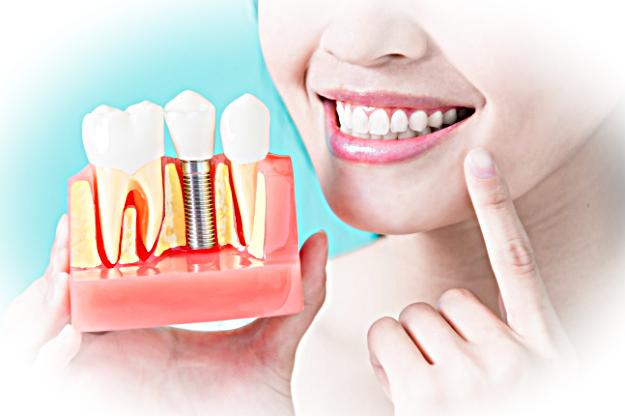 Имплантация зубов. Что нужно знать пациенту?
