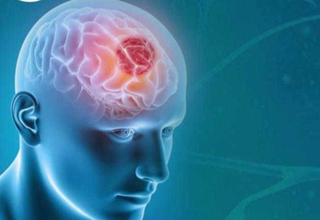 Опухоль гипофиза: симптомы, диагностика и лечение